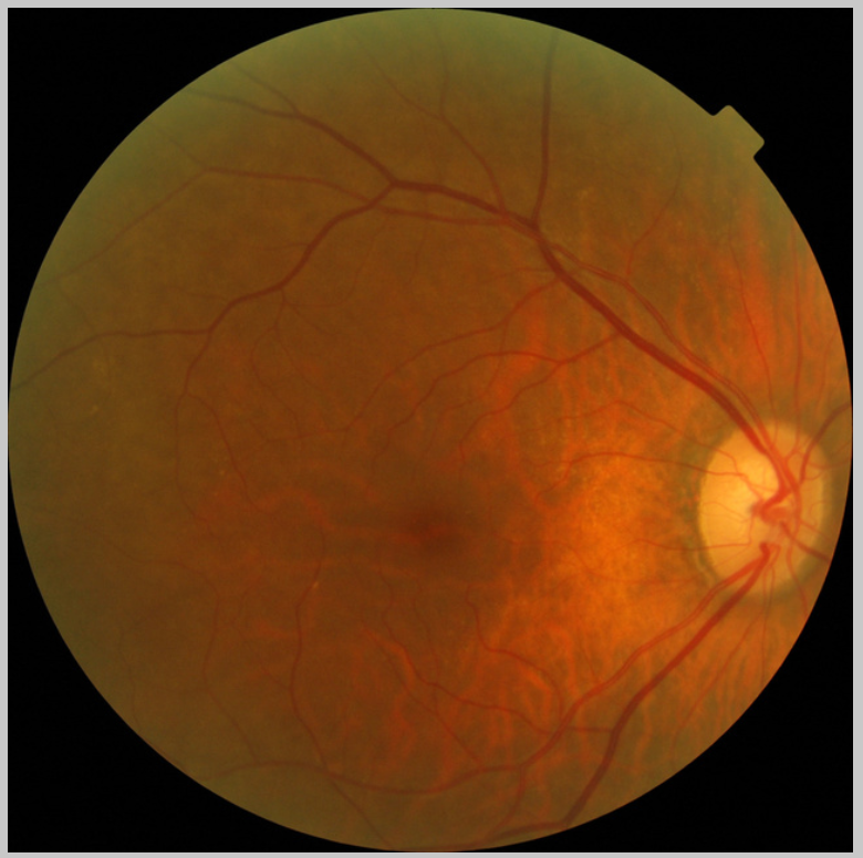 RETIPROGRAM 2.0: A clinical decision support system for Diabetic Retinopathy early detection