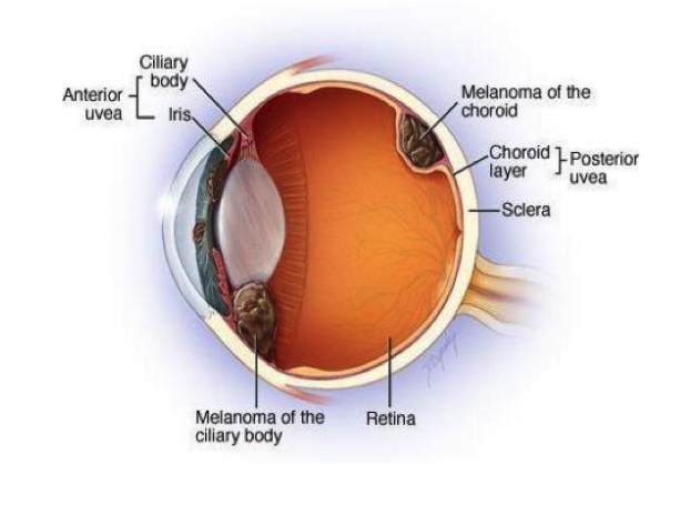 Companion diagnostic for cutaneous and uveal melanoma
