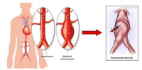 Peptide for the prevention and treatment of aneurysm